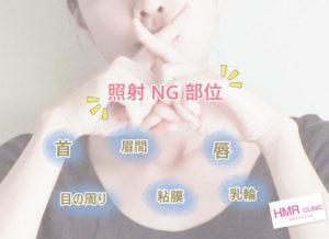 照射NG部位は首・目の周り・眉間・粘膜・唇・乳輪。