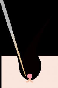 ニードル脱毛:毛穴に針を刺して電流を流し、脱毛する