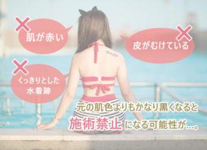 肌が赤い・皮がむけている・くっきりとした水着跡、など元の肌色よりもかなり黒くなると施術禁止になる可能性が…。