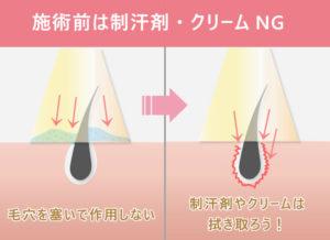 施術前は制汗剤・クリームNG 毛穴を塞いで作用しない 制汗剤やクリームは拭き取ろう!