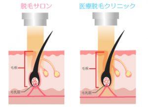 一般的な脱毛の照射の仕組み:毛根に照射の光が行く