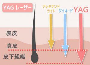 アレキサンドライト・ダイオード・YAG比較