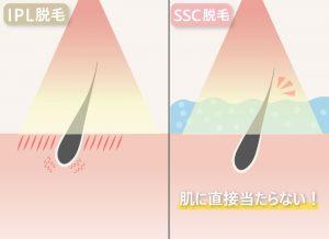 〈SSC脱毛〉肌に直接当たらない!