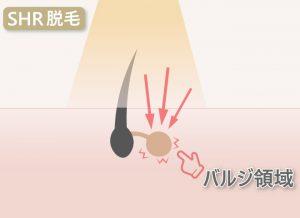 【日焼け サロン脱毛】SHR脱毛はバルジ領域に作用する