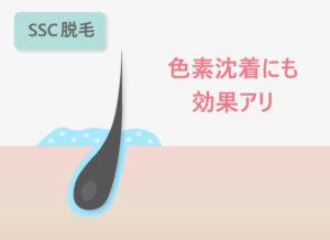 【SSC脱毛】色素沈着に効果アリ