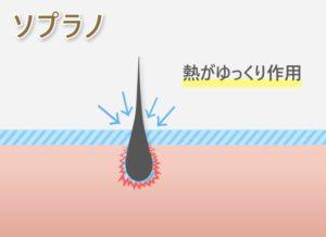 【ソプラノ】熱がゆっくり作用