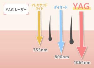 YAGレーザー アレキサンドライトレーザー:755nm ダイオードレーザー:800nm YAGレーザー:1046nm