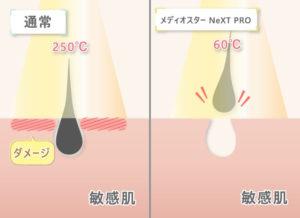通常⇒250℃ ダメージ メディオスター NeXT PRO⇒60℃ 敏感肌