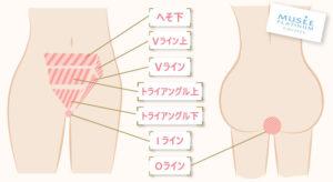 VIO脱毛の範囲は、へそ下~V・I・Oラインを含む7パーツ分