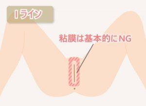 【Iライン】粘膜は基本的にNG