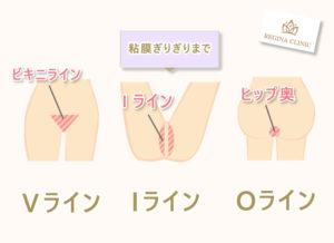 VIO脱毛の範囲はVラインはビキニライン、Iラインは粘膜ぎりぎりまで、Oラインはヒップ奥。