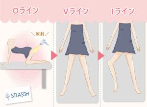 Vラインは仰向け、脚を広めに開いた状態  Iラインは仰向け、片足だけ膝を立て外側に倒した状態 Oラインは四つん這いの状態で照射