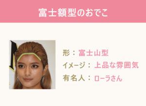 《おでこのデザイン3選》●富士額型のおでこ 形:富士山型 イメージ:上品な雰囲気 有名人:ローラさん