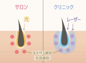毛を作る細胞(毛母細胞)までダメージを与えるのはクリニックの医療レーザー。