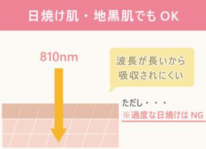 【デピライトが持つ10個の特徴その⑤】日焼け肌・地黒肌でもOK 810nmと波長が長いから吸収されにくい ただし、過度な日焼けはNG