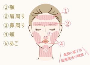 顔の脱毛範囲は大きく分けて5つ。①額 ②眉周り ③鼻周り ④頬 ⑤あご 眉間と眉下は医療脱毛が確実!